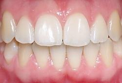 Het beeld van gezond tandvlees. Het ligt strak aan tegen de tanden en kiezen en heeft het aspect van een sinaasappelhuid.